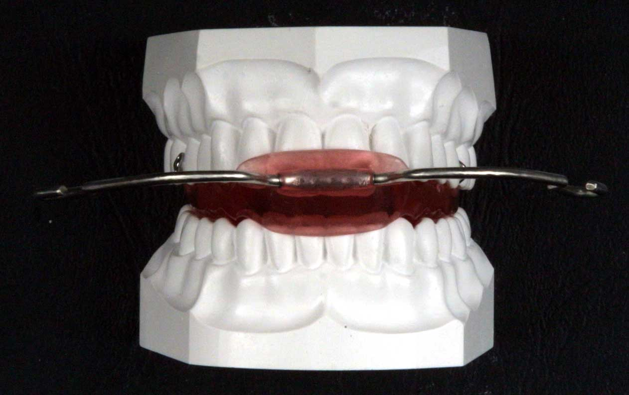 Appareil dentaire - Les differents types - orthodontiepourtous.com