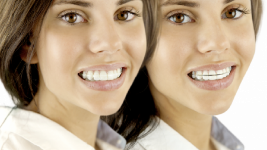 Traitement orthodontique: Deux types de contention differents